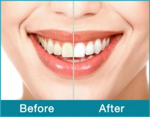 Smile-Before-After_full